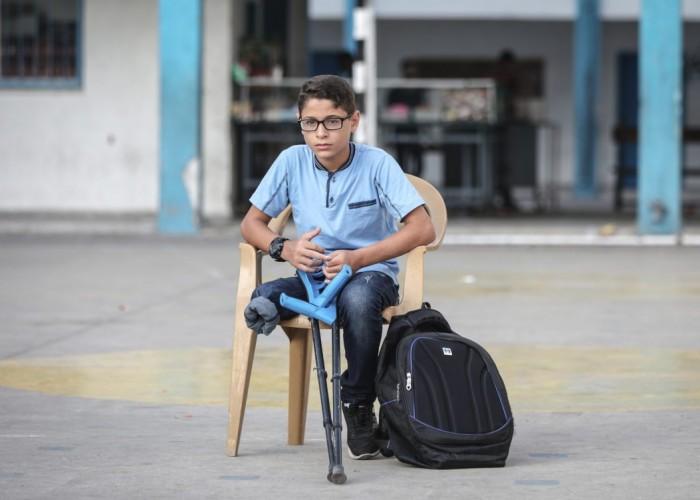 العدوان الإسرائيلي ضاعف فاتورة الإعاقة في قطاع غزة